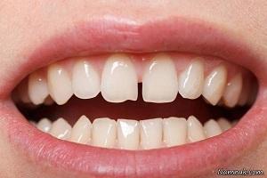 فاصله بین دندان ها و راههای بستن آن