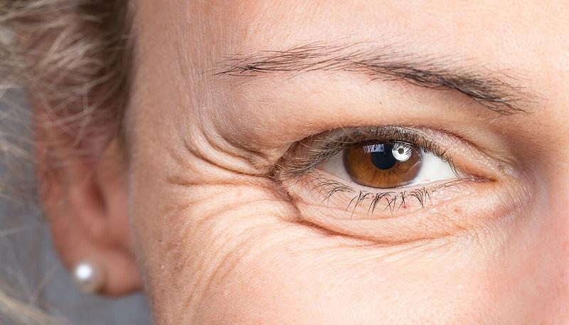 درمان چین و چروک: ۷ نوع چین و چروک صورت و ۴ راه درمان آن