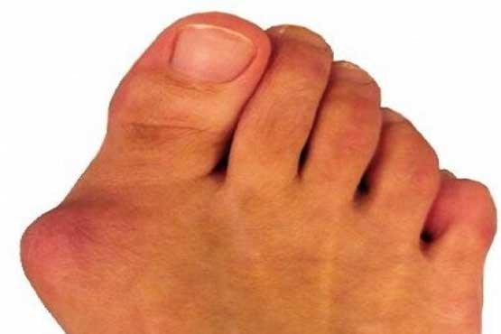 علل ایجاد انحراف انگشت شست پا +درمان