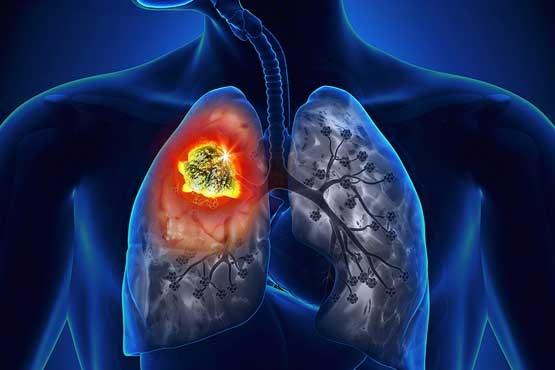 نقش مهم ساعت بدن در ابتلا به بیماری فیبروز ریه
