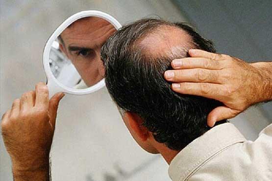 ۱۱ نکته برای جلوگیری از ریزش مو