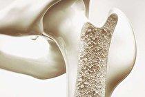 تولید سیمان استخوان با قابلیت خودترمیمی