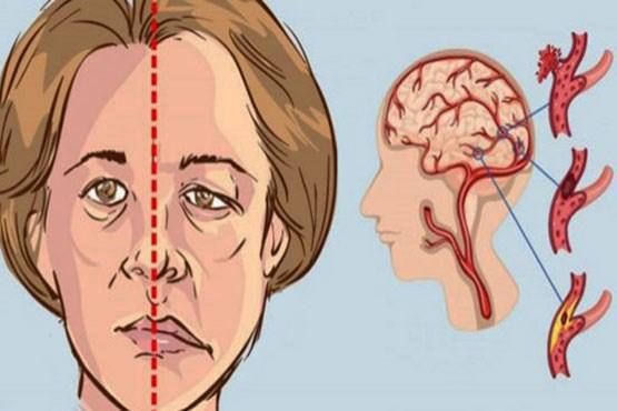 چه عواملی باعث سکته مغزی در خانم ها می شود؟