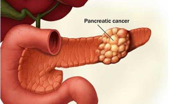 آشنایی با علائم سرطان پانکراس
