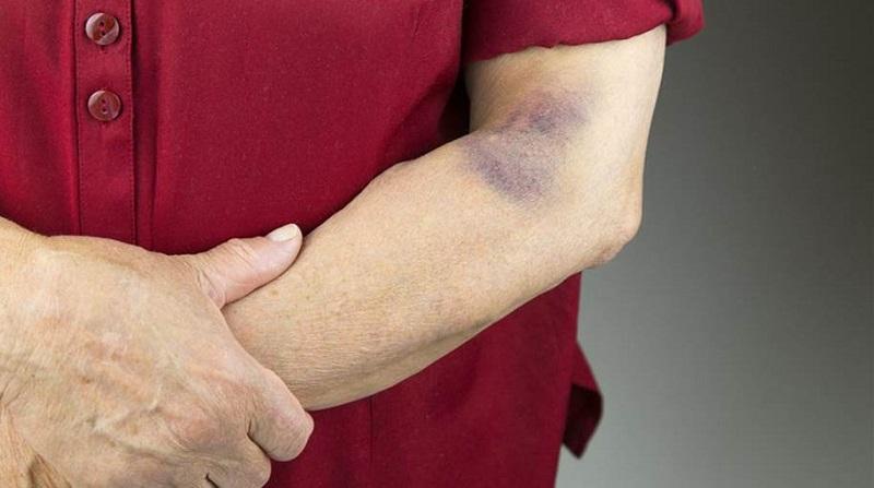 درمان خون مردگی: ۳۰ روش سریع و آسان رفع خون مردگی زیر پوست