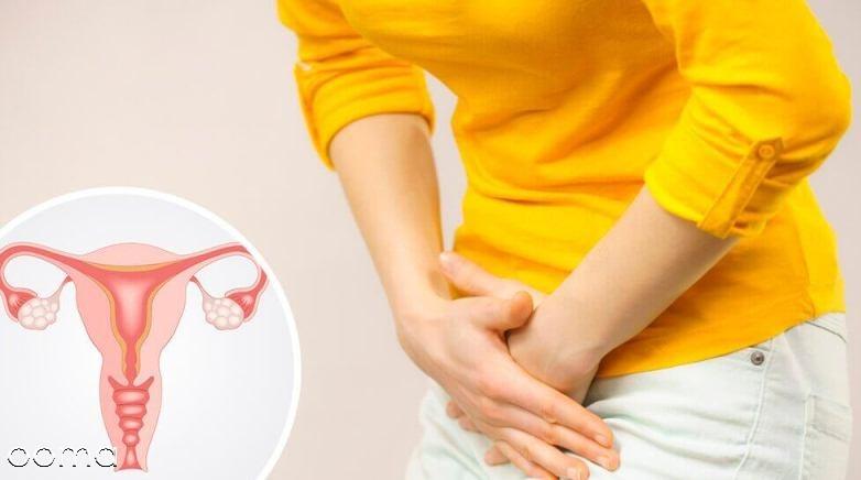 دلایل درد تخمدان را بهتر بشناسید
