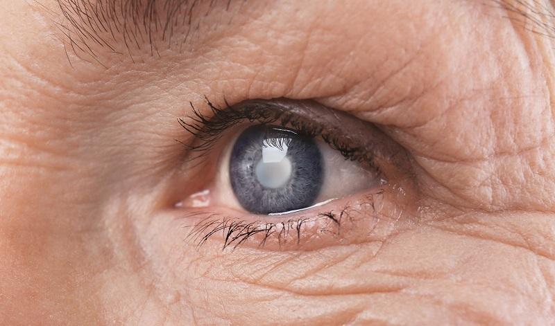 آب سیاه چشم: ۷ درمان خانگی گلوکوم + علائم آب سیاه چشم