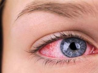 وجود جسم خارجی در چشم و راههایی برای خارج ساختن آن