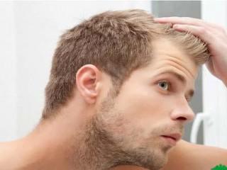بهترین روشهای درمان ریزش مو در مردان