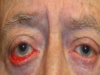 تشریح کامل بیماری اکتروپیون در افراد مسن