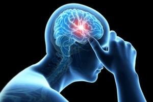 انواع سکته های مغزی