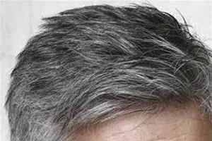 عوامل سفیدی زودرس موها