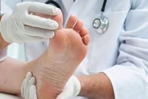 این بیماری با خارش کف پا خودنمایی میکند