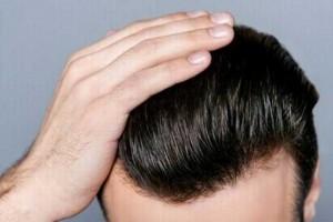 ۱۴ راهکار برای داشتن موهای سالم