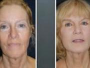 ویدئو : ورزش صورت برای رفع خط لبخند