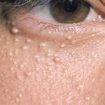 دانه های سفید زیر چشم علل و درمان