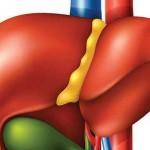 علائم بیماریهای کبد و علت فرسودگی این عضو از بدن