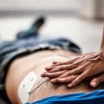 ارائه اطلاعاتی در رابطه با فیبریلاسیون بطنی