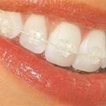 نسخه ابوعلی سینا برای داشتن دندانهای زیبا و لثه سالم