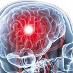علل مهم لخته شدن خون در مغز و پیشگیری از آن