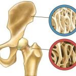 با ورزش پوکی استخوان ها را درمان کنید