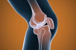 درمان معجزه آسای زانو درد