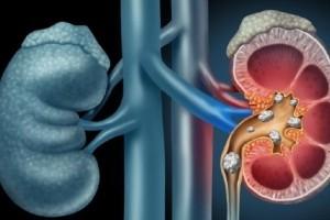 دفع سنگ کلیه: ۱۰ درمان خانگی فوقالعاده برای دفع سنگ کلیه