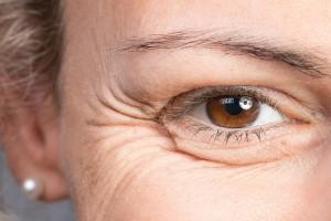 ۷ نوع چین و چروک صورت و ۴ راه درمان آن