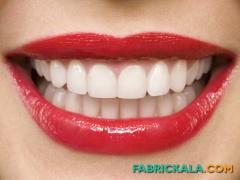 خطرات دندان هالیوودی