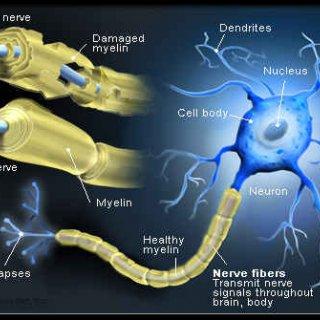 کنترل و درمان بیماری MS (مالتیپل اسکلروزیس) با دستگاه فیزیوتراپی خانگی فارادیک بریجیس