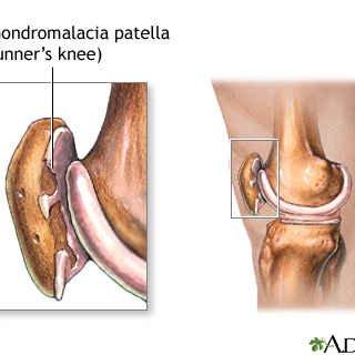 درمان بیماری کندرومالاسی (نرمی کشکک زانو) با دستگاه فیزیوتراپی خانگی فارادیک بریجیس