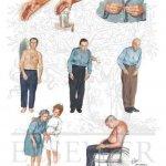 درمان بیماری پارکیسون parkinson disease با دستگاه فیزیوتراپی خانگی فارادیک بریجیس
