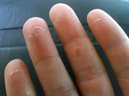 روش درمان انگشتان پوسته پوسته شده