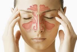راههایی برای کاهش درد سینوسها