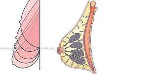 درمان افتادگی سینه با گیاهان