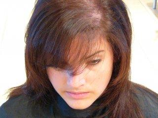 علت خالی شدن موی سر در خانم ها