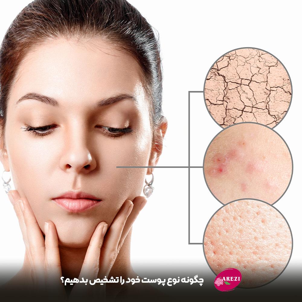 چگونه میتوانیم تشخیص دهیم که پوست ما از چه نوعی است؟