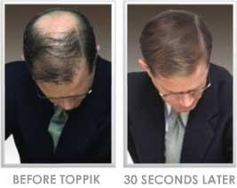 پودر پر پشت کننده موی ایدان