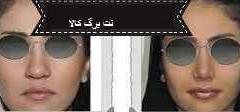 کوچک کننده بینی های گوشتی
