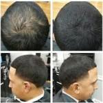 انواع پودر پر پشت کننده موی ایدان
