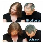 خرید پودر پر پشت کننده موی ایدان
