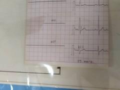 الکتروکاردیوگراف( نوار قلب) سه کاناله شیلر مدل AT-1