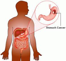 سرطان معده بیشتر در چه افرادی دیده می شود و آیا ژنتیک نیز تأثیر دارد؟