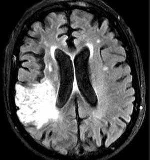 درمان سکته مغزی با روش جدید