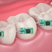 دندانهای ديجيتال