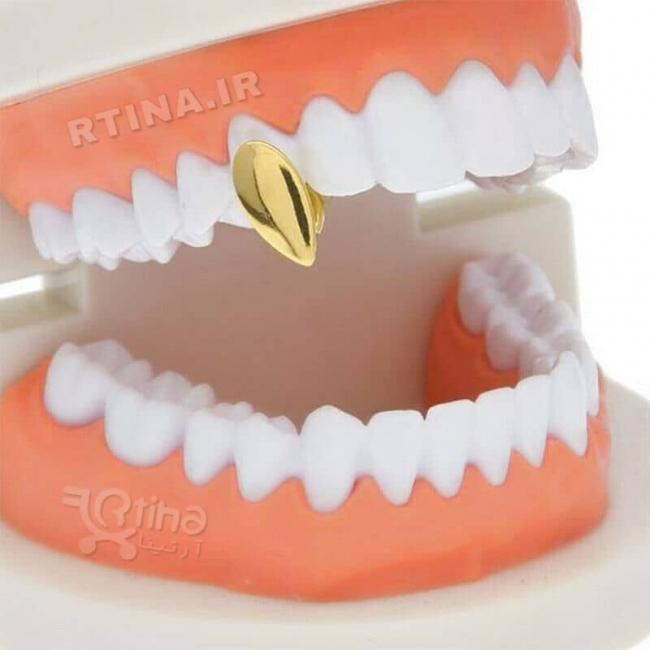 روکش تزئینی تک دندان مدل Vampire