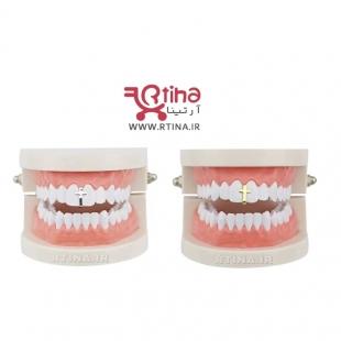 فروش گریلز دندان