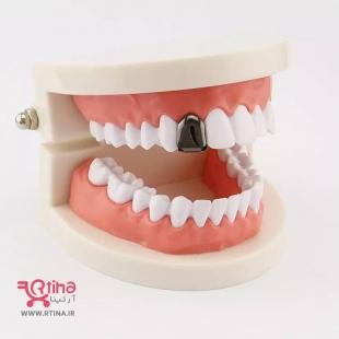 پیرسینگ دندان