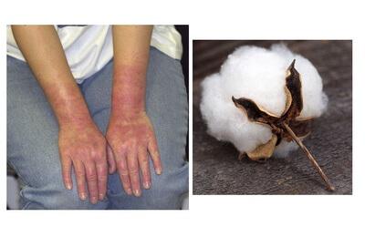 تاثیر جنس دستکش بر پوست